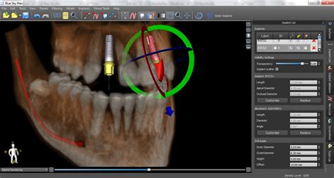 Implant Planning Software for Free   Blue Sky Bio