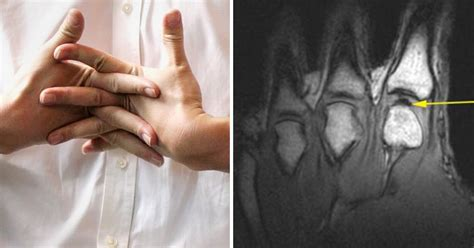 Will knuckle-cracking damage your fingers? Scientists